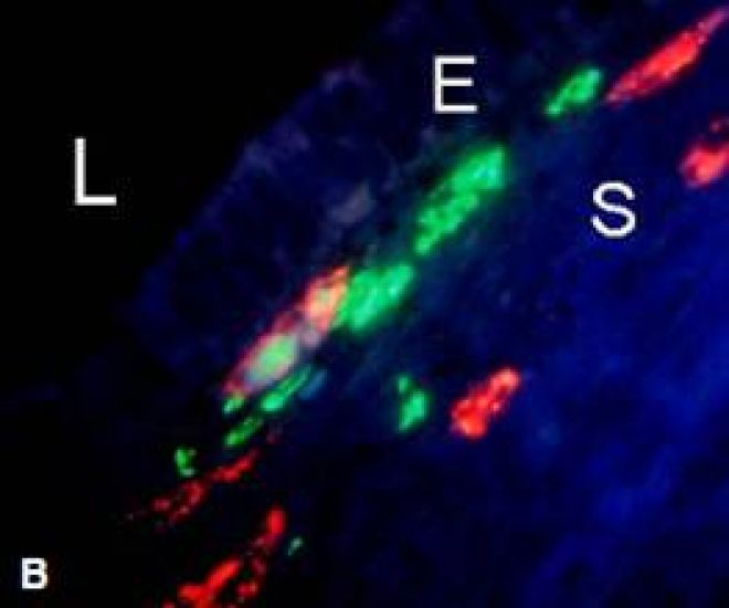 Trichrome staining to depict nerve fibers (green) co-localized with immature vessels (red) (L: lumen, E: epithelial cells; S: stromal cells)