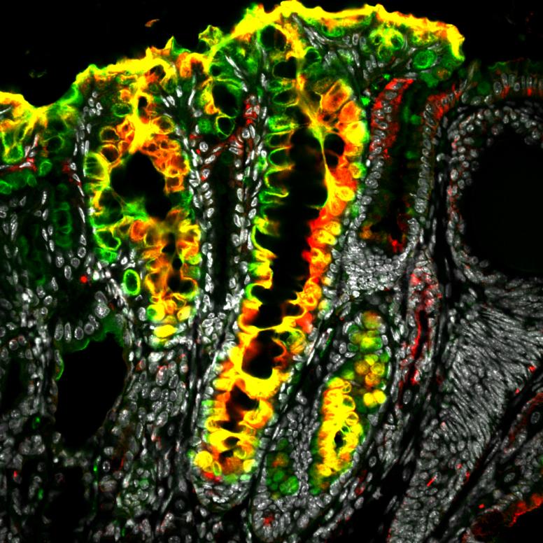 Lgr5+ Stammenzellen im Magen tragen sowohl zu regenerativen Prozessen als auch zu Entwicklung von Krebs bei